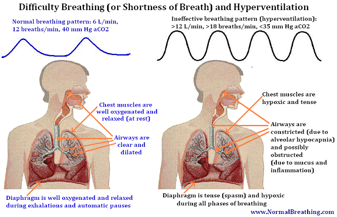 Shortness-of-breathing-difficulty